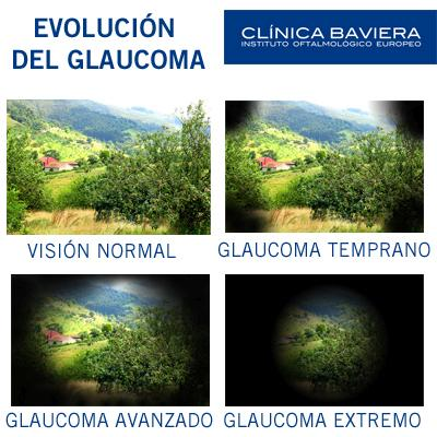 EVOLUCIÓN DEL GLAUCOMA