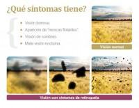 Esquema síntomas retinopatía diabética