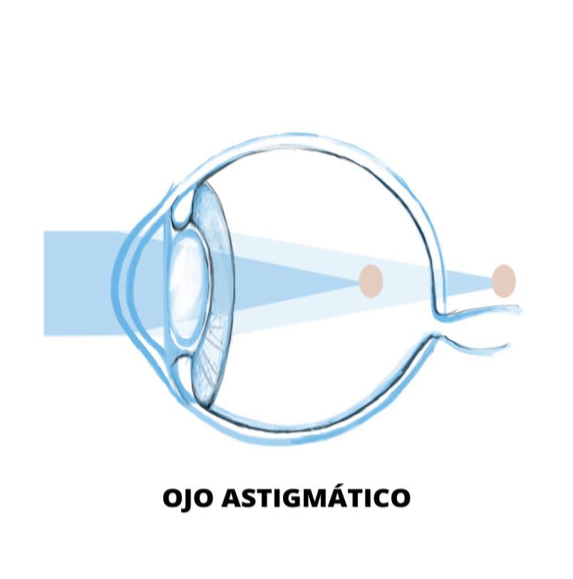 a0eed5cc51987c ¿Me puedo operar de astigmatismo? | Blog de Clínica Baviera