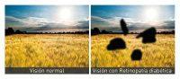 Visión normal y visión con retinopatía diabética