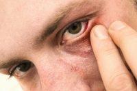 Hombre con ojo rojo tocándose con la mano el ojo