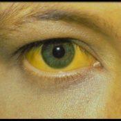 ¿Qué pueden indicar los ojos amarillentos?