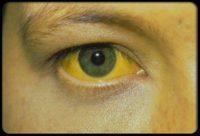 Ojo con manchas amarillas