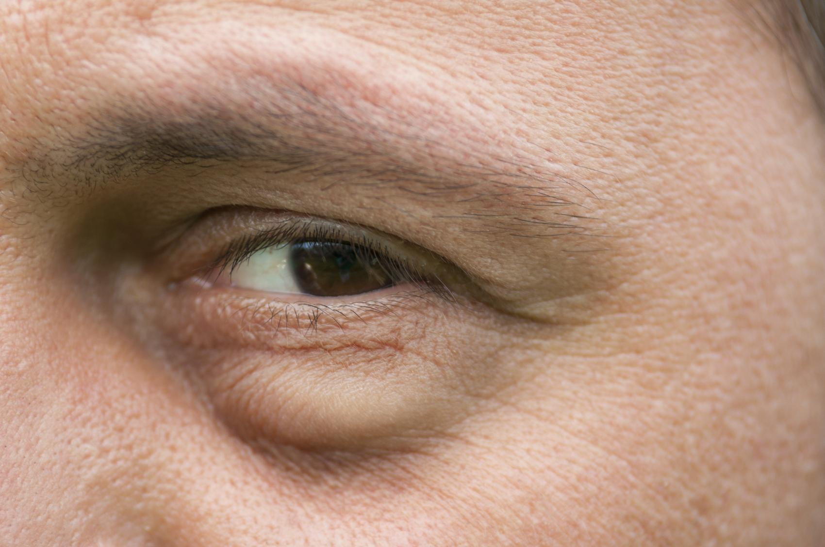 ojo hinchado