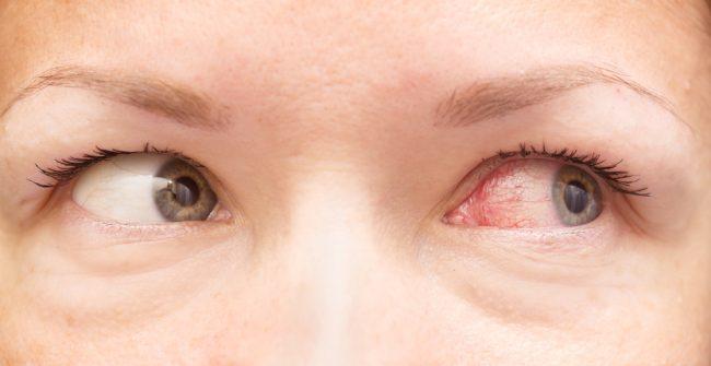 Vision Dark Rings Blood Pressure