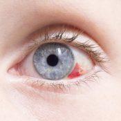 Derrames oculares: ¿por qué se producen?