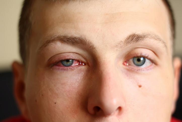 Hombre con los ojos rojos