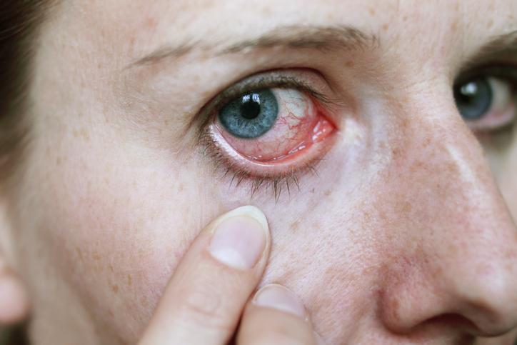 Enfermedades de la vista - Notitarde