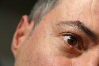 Primer plano ojo de hombre con bulto en borde del párpado