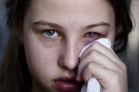 Adolescente limpiándose un ojo con un pañuelo