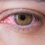 ¿Debo preocuparme por tener venas en los ojos?