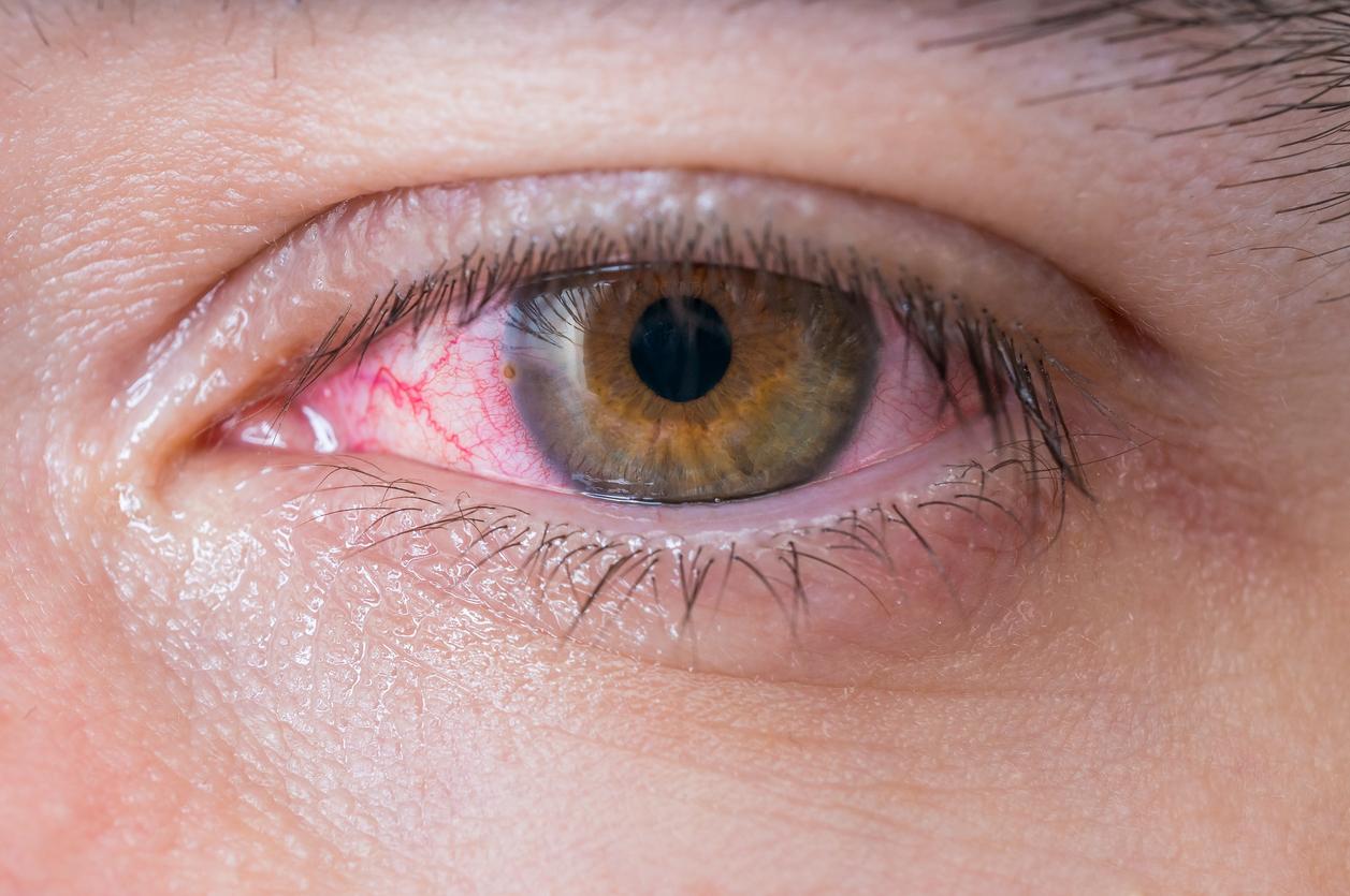 venas en los ojos