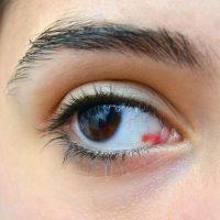 Derrame ocular en ojo marrón