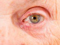 Ojo rojo de anciano con lágrima