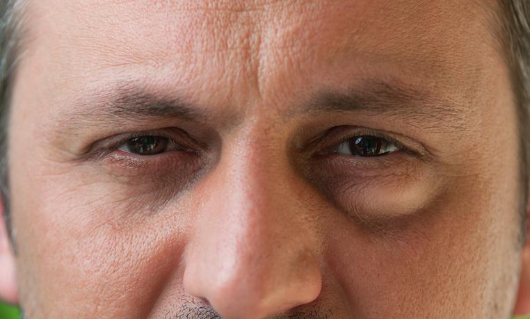 Sinusitis Augen Geschwollen