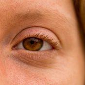 Arrugas en los párpados superiores: por qué aparecen y cómo solucionarlas