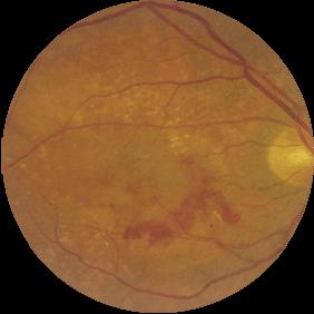 Fondo de ojo DMAE húmeda